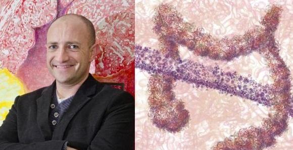 Probiotics trump antiobiotics in preventing infections
